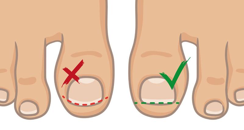 Jak strihat nehty